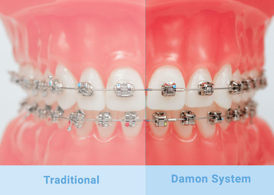 Damon Self Ligating Brackets Valerian Orthodontics